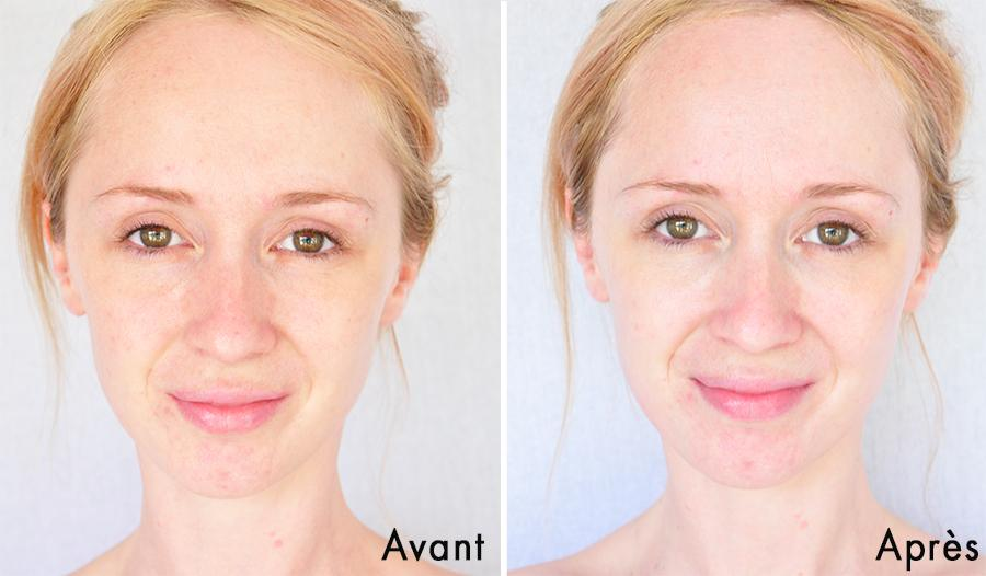 Hình ảnh trước và sau khi dùng Mặt nạ Nuxe Bio Beauté