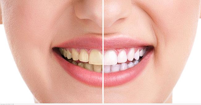 Có rất nhiều nguyên nhân khiến răng bị ố vàng